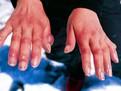 degeraturi, tratamente pentru degeraturi, cum se trateaza degeraturile