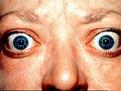 hipertiroidie, hipertiroidism, boala Basedow, boala lui Graves, basedow-graves, simptome basedow-graves, hipertiroidian, tratament hipertiroidie, tratamente pentru basedow-graves, simtome hipertiroidism, hipertiroidie, hipertiroidism, boala Basedow, boala