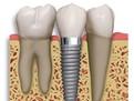 Implanturile dentare, despre Implanturile dentare, ce sint Implanturile dentare, cit dureaza sa pui Implanturi dentare, cat costa Implanturile dentare