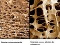 osteoporoza, osteoporoza, ce este osteoporoza, cum tratam osteoporoza,  boli ale oaselor