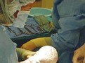 Operaia cezariana
